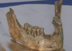 Mandíbula calcolítica de Santimamiñe (4.000 años antes del presente)